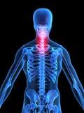 απεικόνιση πόνου στην πλάτη Στοκ Φωτογραφίες