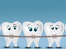 Απεικόνιση των οδοντικών στηριγμάτων διανυσματική απεικόνιση