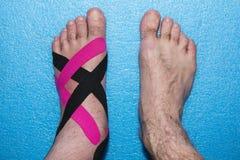 Αποκατάσταση εφαρμογών με τα πόδια μετά από τον τραυματισμό Στοκ εικόνα με δικαίωμα ελεύθερης χρήσης