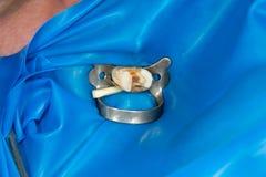 Αποκατάσταση μιας σάπιας αποσυντεθειμένης δόντι κινηματογράφησης σε πρώτο πλάνο δοντιών Η έννοια της θεραπευτικής αισθητικής οδον στοκ φωτογραφίες