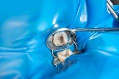 Αποκατάσταση μιας σάπιας αποσυντεθειμένης δόντι κινηματογράφησης σε πρώτο πλάνο δοντιών Η έννοια της θεραπευτικής αισθητικής οδον στοκ εικόνα με δικαίωμα ελεύθερης χρήσης