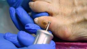 Αποκοπή των calluses στο toe με μια μηχανή pedicure φιλμ μικρού μήκους