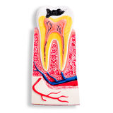 Απομονωμένο πρότυπο δοντιών τερηδόνων επίδειξης οδοντιάτρων Στοκ Εικόνες