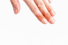 Απομονωμένο χέρι γυναικών με τους τραυματισμούς Στοκ εικόνες με δικαίωμα ελεύθερης χρήσης