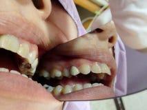 Αποσυντεθειμένη εξέταση δοντιών Στοκ εικόνα με δικαίωμα ελεύθερης χρήσης