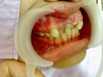 Αποσυντεθειμένη εξέταση δοντιών Στοκ Εικόνες