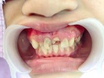 Αποσυντεθειμένη εξέταση δοντιών Στοκ φωτογραφία με δικαίωμα ελεύθερης χρήσης