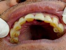 Αποσυντεθειμένη εξέταση δοντιών Στοκ εικόνες με δικαίωμα ελεύθερης χρήσης
