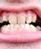 Αποσύνθεση ταρτάρου και δοντιών στοκ εικόνα με δικαίωμα ελεύθερης χρήσης