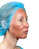Αποφλοίωση TCA.Cosmetology. Στοκ Εικόνες