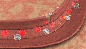 Απώλεια αίματος διανυσματική απεικόνιση