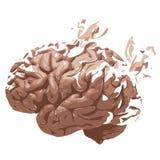 Απώλεια εγκεφάλου στοκ εικόνες με δικαίωμα ελεύθερης χρήσης