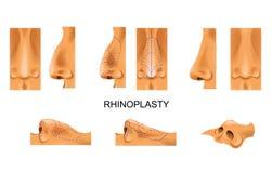 αριθ Rhinoplasty ωριμάστε πέρα από τη λευκή γυναίκα πλαστικής χειρουργικής ελεύθερη απεικόνιση δικαιώματος