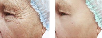 Αρσενικές ρυτίδες πριν και μετά από τις επεξεργασίες στοκ εικόνες