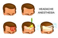 Αρσενικό κεφάλι, πόνος, αναλγησία Στοκ Εικόνες