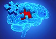 Ασθένεια άνοιας και μια απώλεια λειτουργίας και μνημών εγκεφάλου ελεύθερη απεικόνιση δικαιώματος