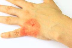 Ασθένεια δερμάτων Στοκ εικόνα με δικαίωμα ελεύθερης χρήσης