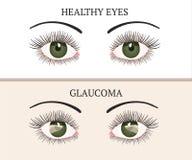 Ασθένεια ματιών Απεικόνιση υγείας οφθαλμολογίας απεικόνιση αποθεμάτων