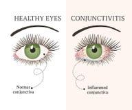 Ασθένεια ματιών Απεικόνιση υγείας οφθαλμολογίας στοκ εικόνα