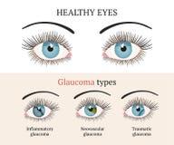 Ασθένεια ματιών Απεικόνιση υγείας οφθαλμολογίας ελεύθερη απεικόνιση δικαιώματος