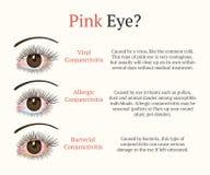 Ασθένεια ματιών Απεικόνιση υγείας οφθαλμολογίας διανυσματική απεικόνιση