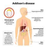 Ασθένεια του Addison απεικόνιση αποθεμάτων