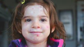 Ασθένεια varicella φλυκταινώδους νόσου κοτόπουλου του πορτρέτου προσώπου παιδιών απόθεμα βίντεο
