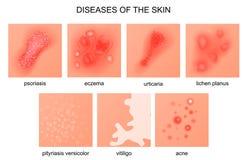 Ασθένειες του δέρματος απεικόνιση αποθεμάτων