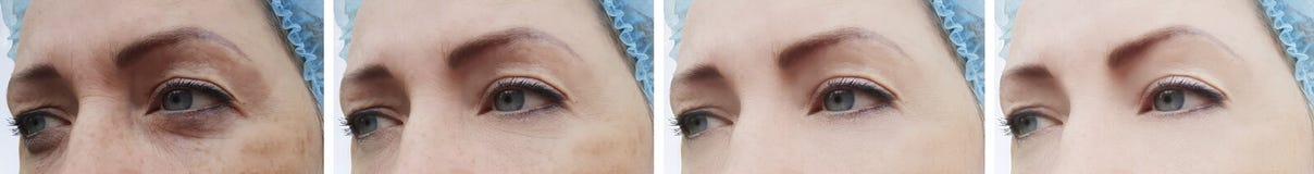 Ασθενής αναγέννησης ρυτίδων προσώπου γυναικών πριν και μετά από cosmetology την αναζωογόνηση θεραπείας στοκ εικόνα με δικαίωμα ελεύθερης χρήσης