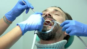 Ασθενής και χέρια των οδοντιάτρων απόθεμα βίντεο