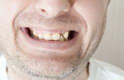 Ασθενή δόντια του ασθενή Στοκ φωτογραφίες με δικαίωμα ελεύθερης χρήσης