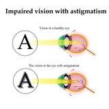 ασθματικό Δεδομένου ότι το μάτι μπορεί να δει με τον αστιγματισμό διανυσματική απεικόνιση