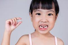 Ασιατικό κινεζικό μικρό κορίτσι που κρατά το ελλείπον δόντι της Στοκ φωτογραφίες με δικαίωμα ελεύθερης χρήσης