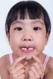 Ασιατικό κινεζικό μικρό κορίτσι που παρουσιάζει ελλείπον δόντι της Στοκ Εικόνες