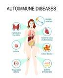 Αυτοάνοσες ασθένειες διανυσματική απεικόνιση
