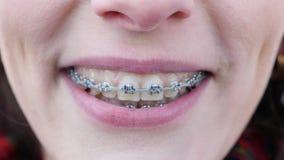 Αυτό το βίντεο είναι για το νέο κορίτσι με τα στηρίγματα στα δόντια που εξετάζει τη κάμερα και το χαμόγελο o Τα δόντια είναι βρώμ απόθεμα βίντεο