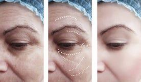 Αφαίρεση ρυτίδων δερμάτων γυναικών πριν από τη διαφορά μετά από cosmetology κολάζ την αντίθεση επεξεργασιών αναγέννησης στοκ εικόνες