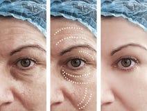 Αφαίρεση ρυτίδων δερμάτων γυναικών πριν από cosmetology μετά από cosmetology κολάζ την αντίθεση επεξεργασιών αναγέννησης στοκ εικόνα