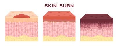 βήμα του εγκαύματος Κανονικό έως σοβαρό δέρμα εγκαυμάτων διάνυσμα και εικονίδιο ελεύθερη απεικόνιση δικαιώματος