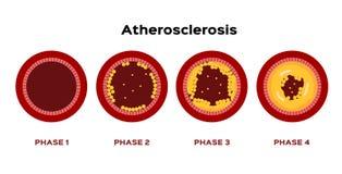 Βήμα Atherosclerosis του γραφικού διανύσματος λίπος που κολλιέται στη χοληστερόλη αρτηριών αίματος ελεύθερη απεικόνιση δικαιώματος