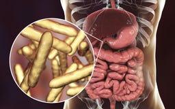 Βακτηρίδια whipplei Tropheryma ανθρώπινο duodenum, ο αιτιολογικός οργανισμός Whipple& x27 ασθένεια του s απεικόνιση αποθεμάτων