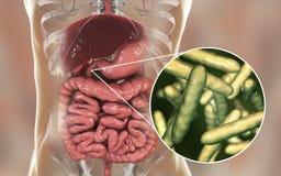 Βακτηρίδια whipplei Tropheryma ανθρώπινο duodenum, ο αιτιολογικός οργανισμός Whipple& x27 ασθένεια του s ελεύθερη απεικόνιση δικαιώματος