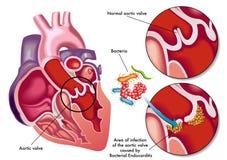 Βακτηριακό endocarditis ελεύθερη απεικόνιση δικαιώματος