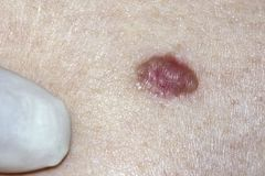 Βασικό καρκίνωμα κυττάρων Στοκ Φωτογραφίες