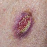 Βασικό καρκίνωμα κυττάρων Στοκ Φωτογραφία