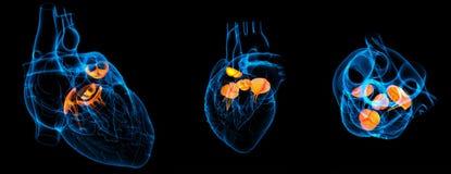 Βαλβίδα καρδιών ελεύθερη απεικόνιση δικαιώματος