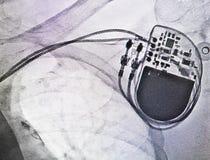 Βηματοδότης ακτίνας X Στοκ Φωτογραφίες