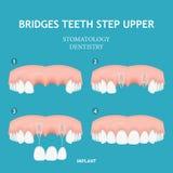 βουρτσίζοντας διάνυσμα δοντιών κατσικιών έννοιας οδοντικό Αφίσα οδοντιατρικής και στοματολογίας Ενιαίο μόσχευμα Στοκ Εικόνα