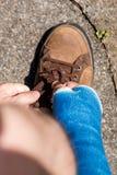 Βραχίονας με το μπλε χυτός στοκ εικόνα