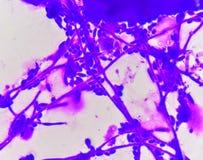 Βλαστάνοντας κύτταρα ζύμης με τα pseudohyphae στοκ εικόνες με δικαίωμα ελεύθερης χρήσης